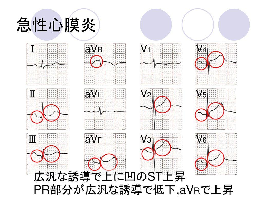 急性心膜炎 広汎な誘導で上に凹のST上昇 PR部分が広汎な誘導で低下,aVRで上昇 Ⅰ aVR V1 V4 Ⅱ aVL V2 V5 Ⅲ