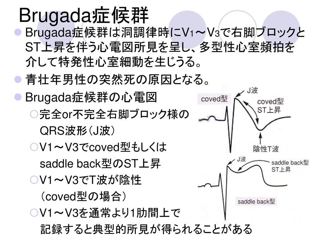Brugada症候群 Brugada症候群は洞調律時にV1~V3で右脚ブロックとST上昇を伴う心電図所見を呈し、多型性心室頻拍を介して特発性心室細動を生じうる。 青壮年男性の突然死の原因となる。 Brugada症候群の心電図.