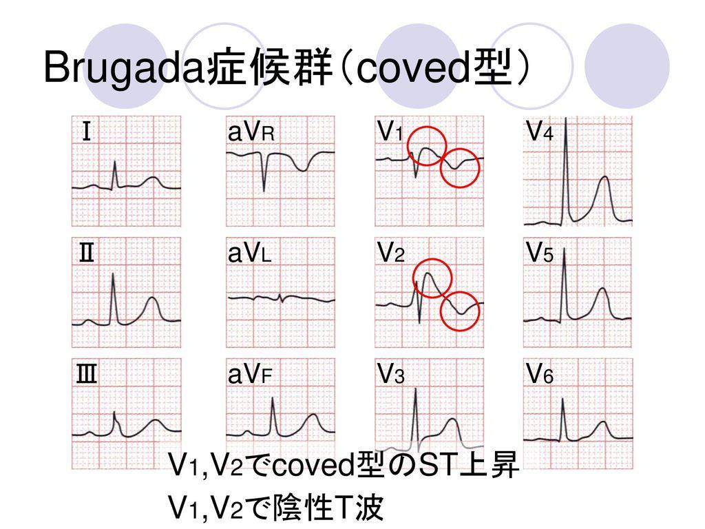 Brugada症候群(coved型) V1,V2でcoved型のST上昇 V1,V2で陰性T波 Ⅰ aVR V1 V4 Ⅱ aVL V2