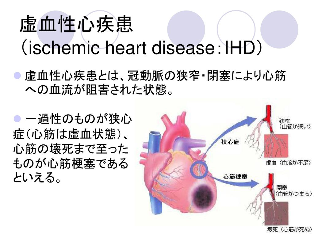 虚血性心疾患 (ischemic heart disease:IHD)