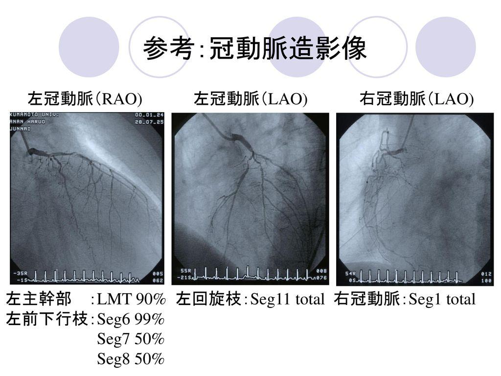 参考:冠動脈造影像 左冠動脈(RAO) 左冠動脈(LAO) 右冠動脈(LAO)