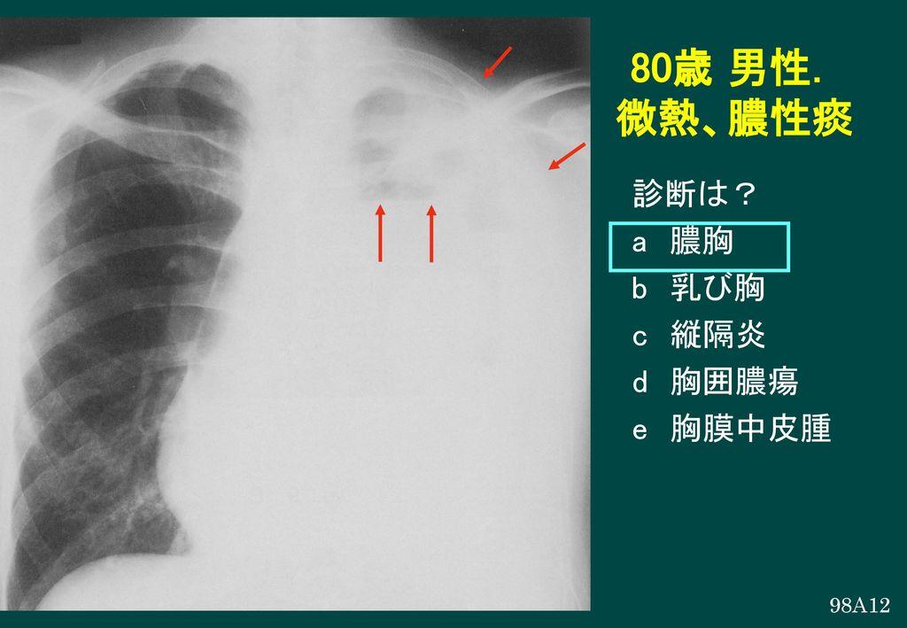 80歳 男性. 微熱、膿性痰 診断は? a 膿胸 b 乳び胸 c 縦隔炎 d 胸囲膿瘍 e 胸膜中皮腫 98A12