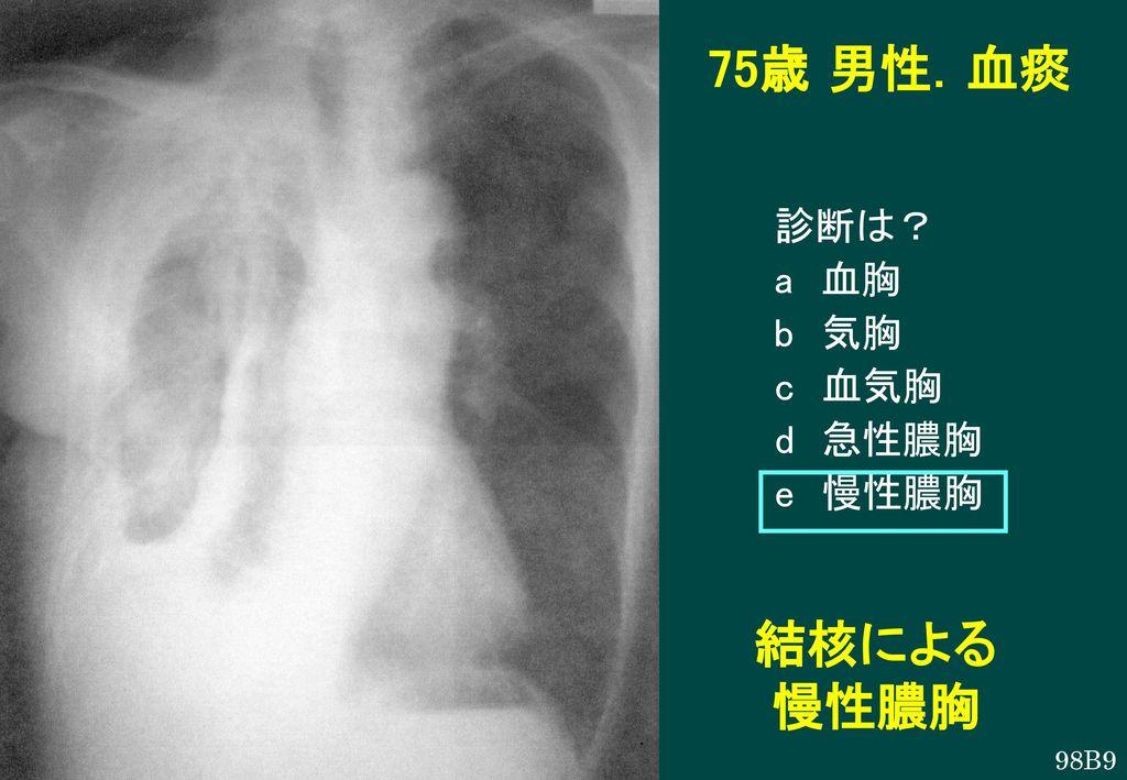 75歳 男性.血痰 診断は? a 血胸 b 気胸 c 血気胸 d 急性膿胸 e 慢性膿胸 結核による 慢性膿胸 98B9
