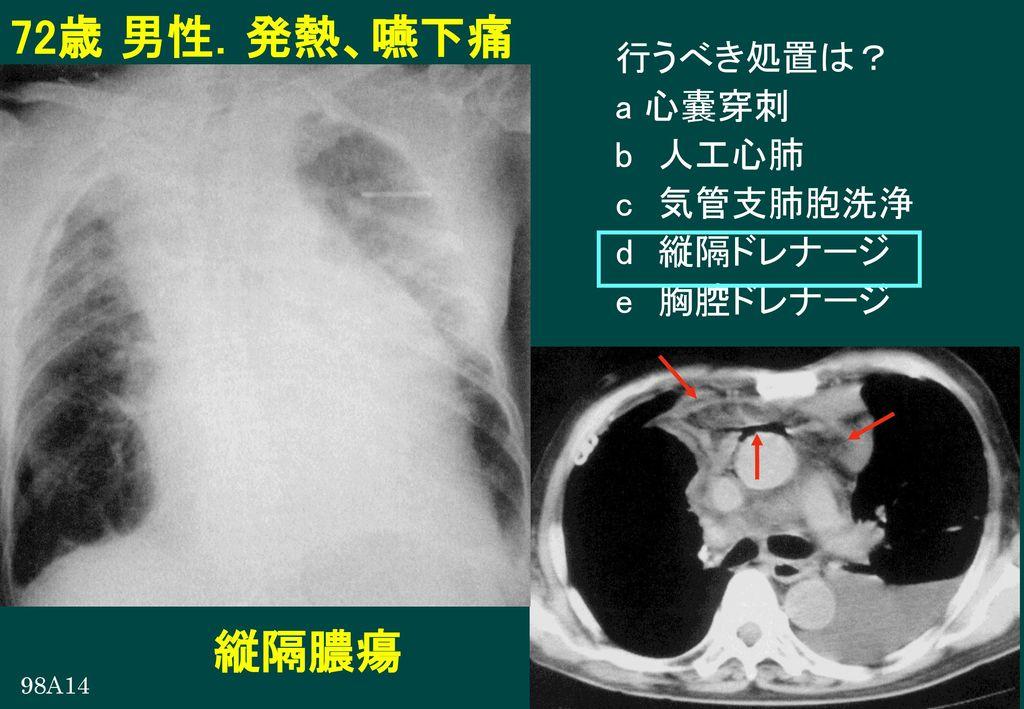 72歳 男性.発熱、嚥下痛 縦隔膿瘍 行うべき処置は? a 心嚢穿刺 b 人工心肺 c 気管支肺胞洗浄 d 縦隔ドレナージ
