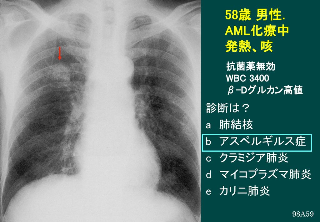 58歳 男性. AML化療中 発熱、咳 診断は? a 肺結核 b アスペルギルス症 c クラミジア肺炎 d マイコプラズマ肺炎