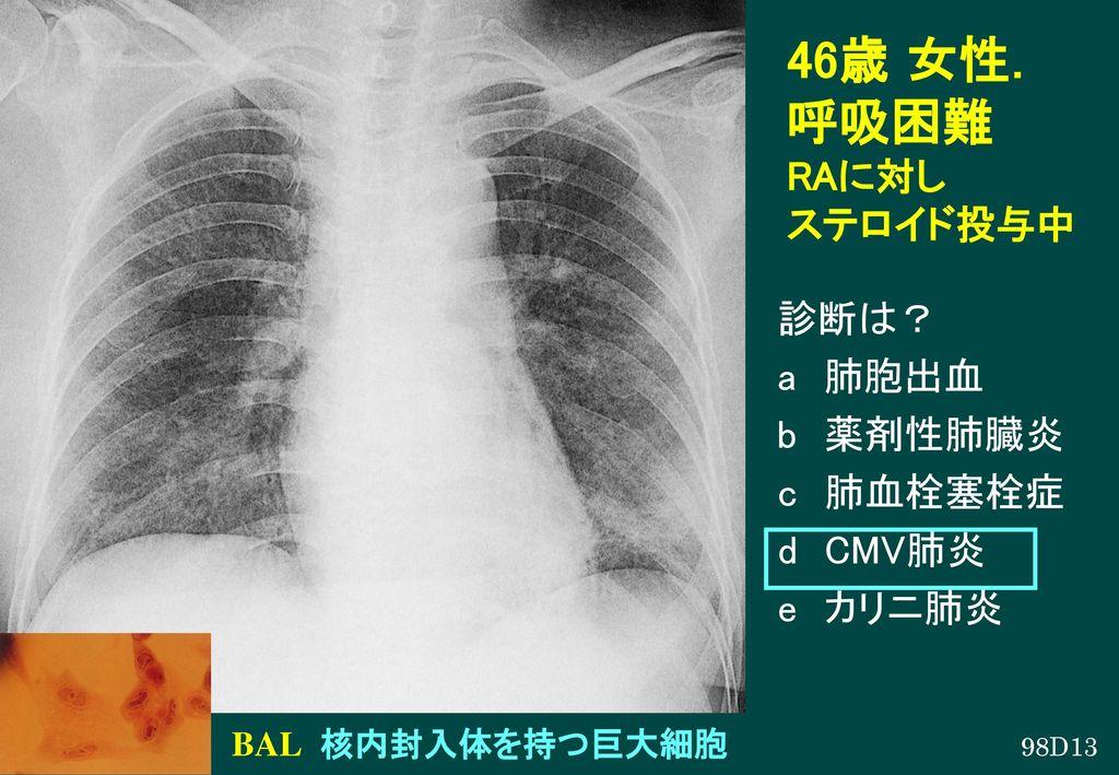 46歳 女性. 呼吸困難 RAに対し ステロイド投与中 診断は? a 肺胞出血 b 薬剤性肺臓炎 c 肺血栓塞栓症 d CMV肺炎