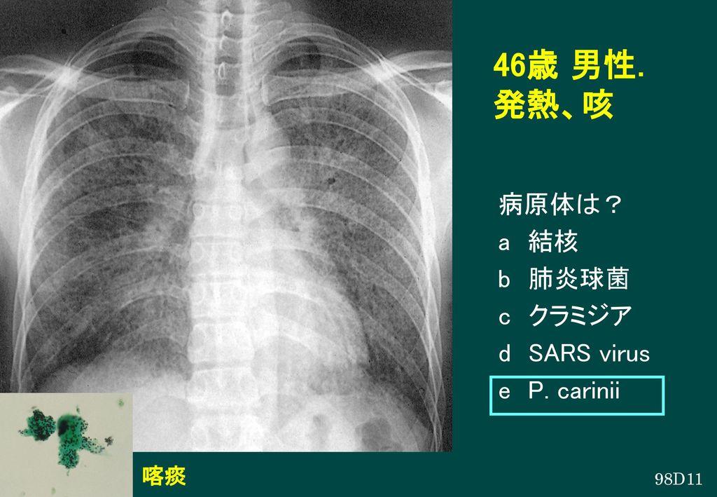 46歳 男性. 発熱、咳 病原体は? a 結核 b 肺炎球菌 c クラミジア d SARS virus e P. carinii 喀痰