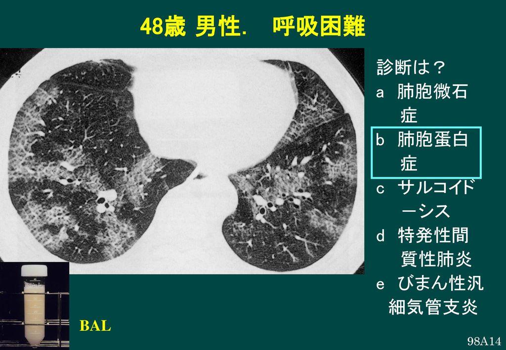 48歳 男性. 呼吸困難 診断は? a 肺胞微石 症 b 肺胞蛋白 c サルコイド -シス d 特発性間 質性肺炎 e びまん性汎
