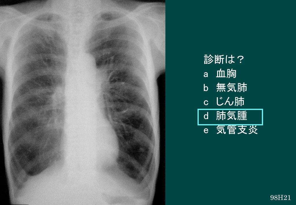 診断は? a 血胸 b 無気肺 c じん肺 d 肺気腫 e 気管支炎 98H21