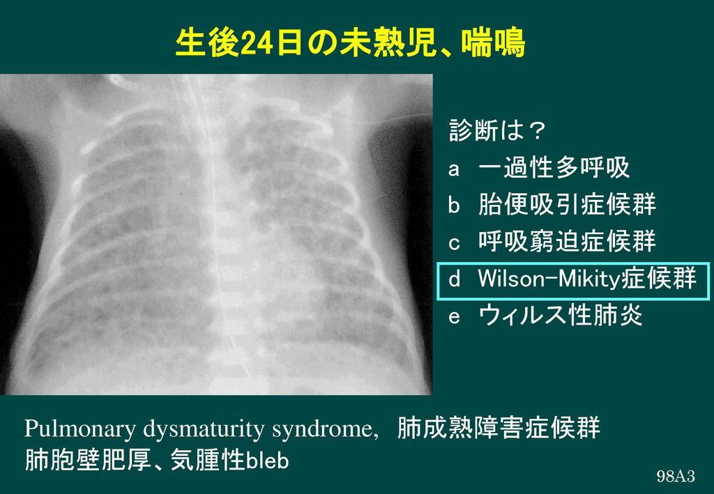 生後24日の未熟児、喘鳴 診断は? a 一過性多呼吸 b 胎便吸引症候群 c 呼吸窮迫症候群 d Wilson-Mikity症候群