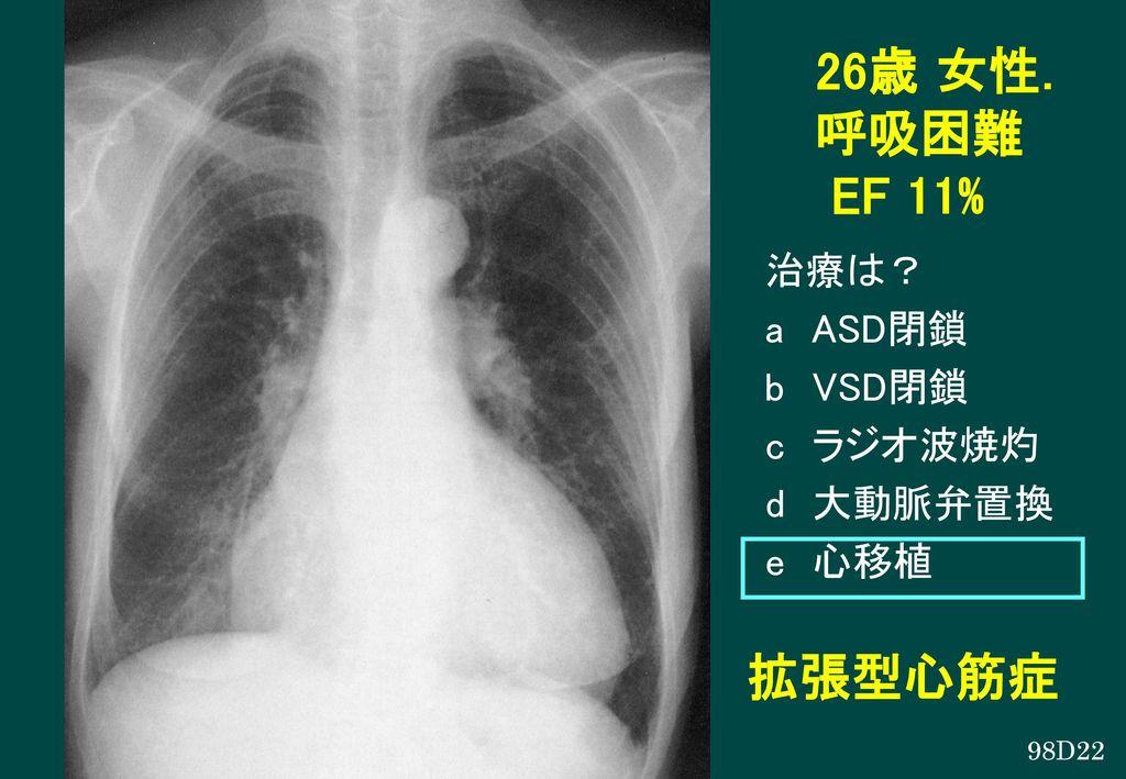 26歳 女性. 呼吸困難 EF 11% 拡張型心筋症 治療は? a ASD閉鎖 b VSD閉鎖 c ラジオ波焼灼 d 大動脈弁置換