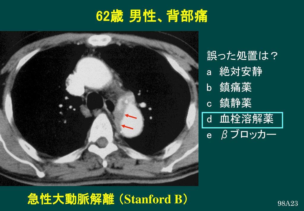 62歳 男性、背部痛 急性大動脈解離 (Stanford B) 誤った処置は? a 絶対安静 b 鎮痛薬 c 鎮静薬 d 血栓溶解薬