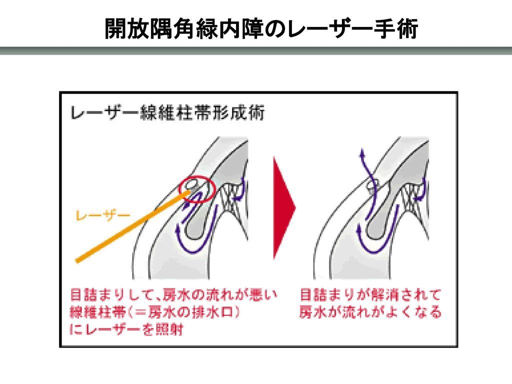 開放隅角緑内障のレーザー手術