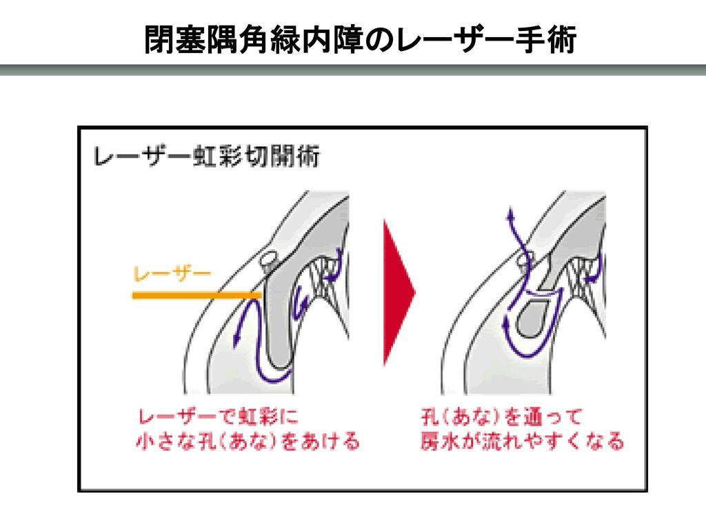 閉塞隅角緑内障のレーザー手術