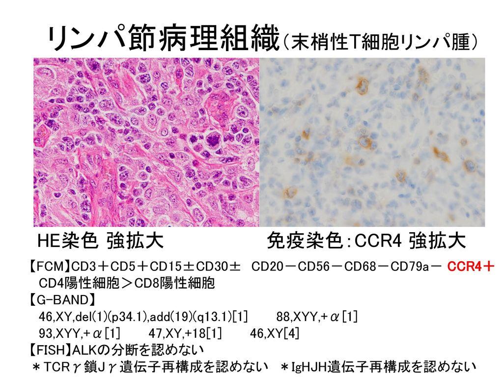 リンパ節病理組織(末梢性T細胞リンパ腫)