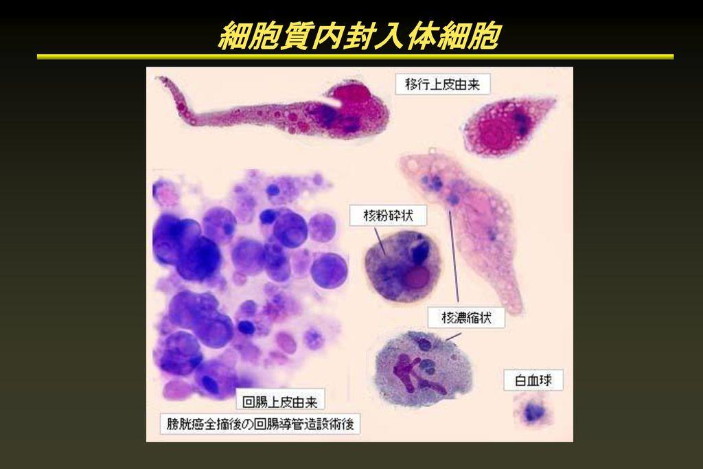 細胞質内封入体細胞
