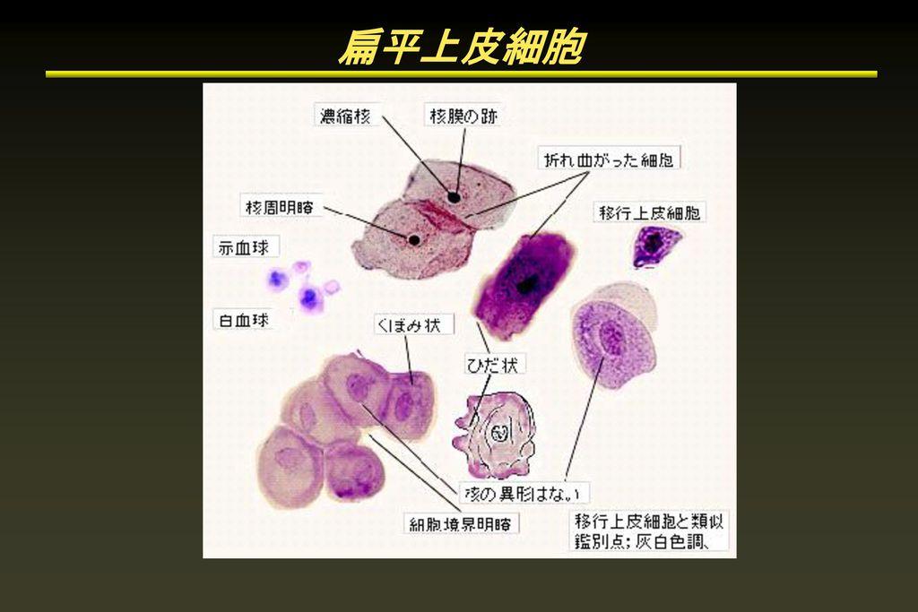 扁平上皮細胞