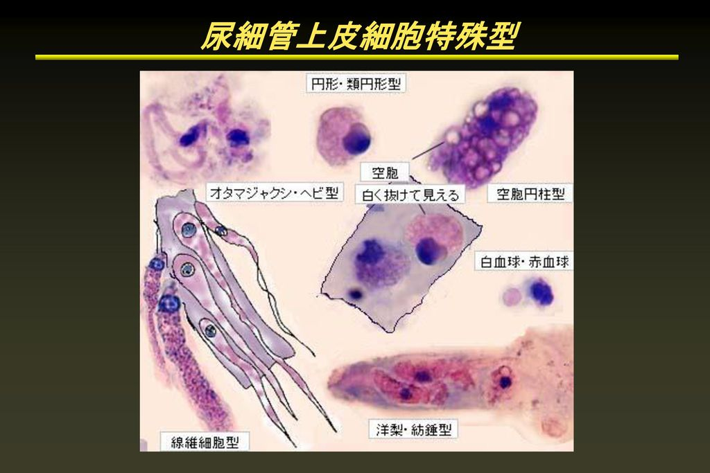 尿細管上皮細胞特殊型