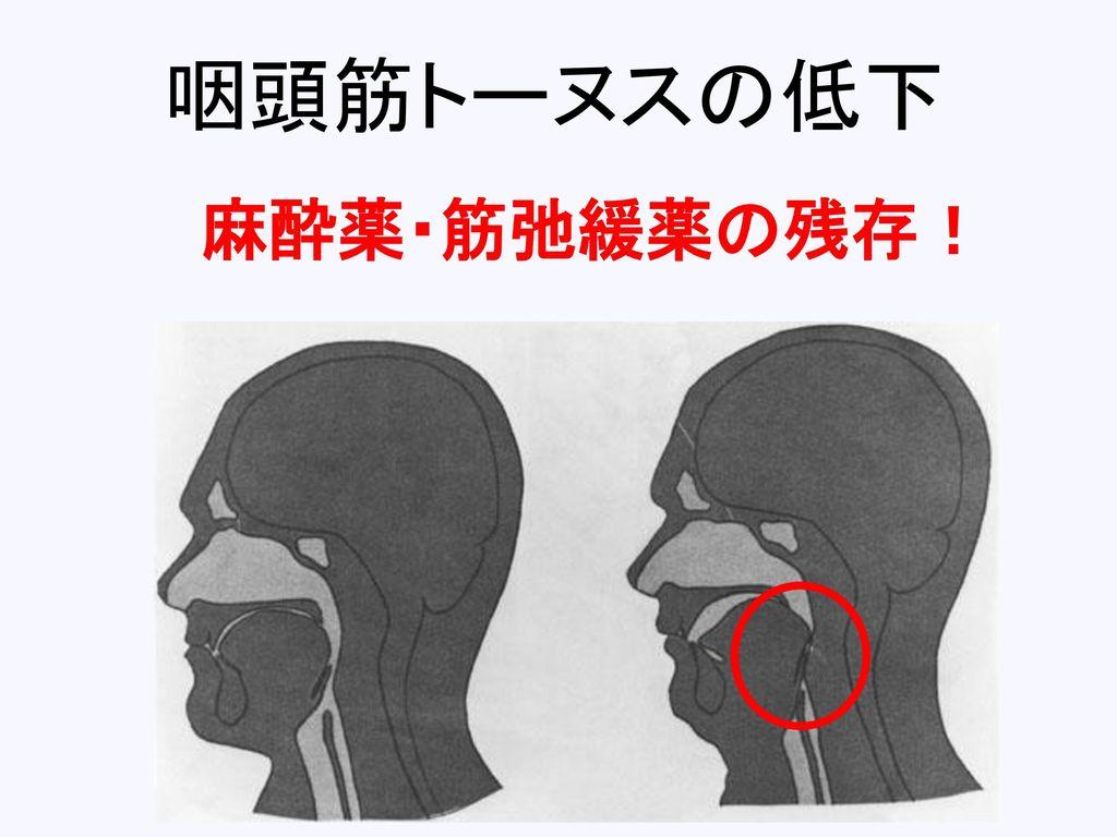 咽頭筋トーヌスの低下 麻酔薬・筋弛緩薬の残存!