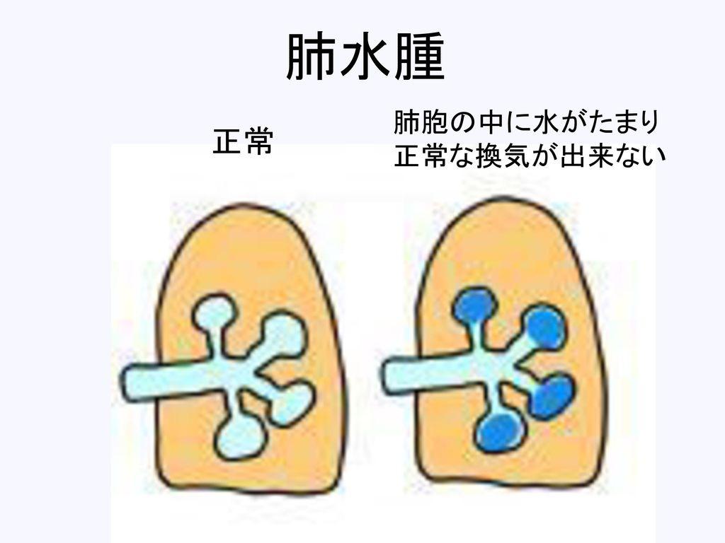 肺水腫 肺胞の中に水がたまり 正常な換気が出来ない 正常
