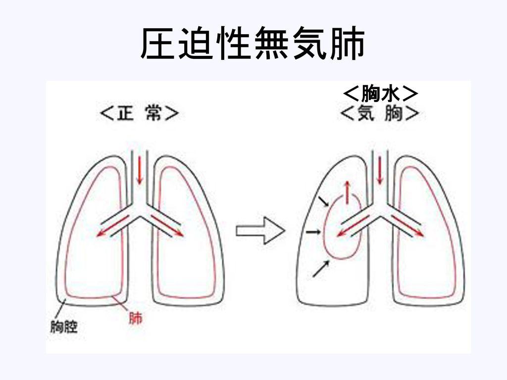 圧迫性無気肺 <胸水>