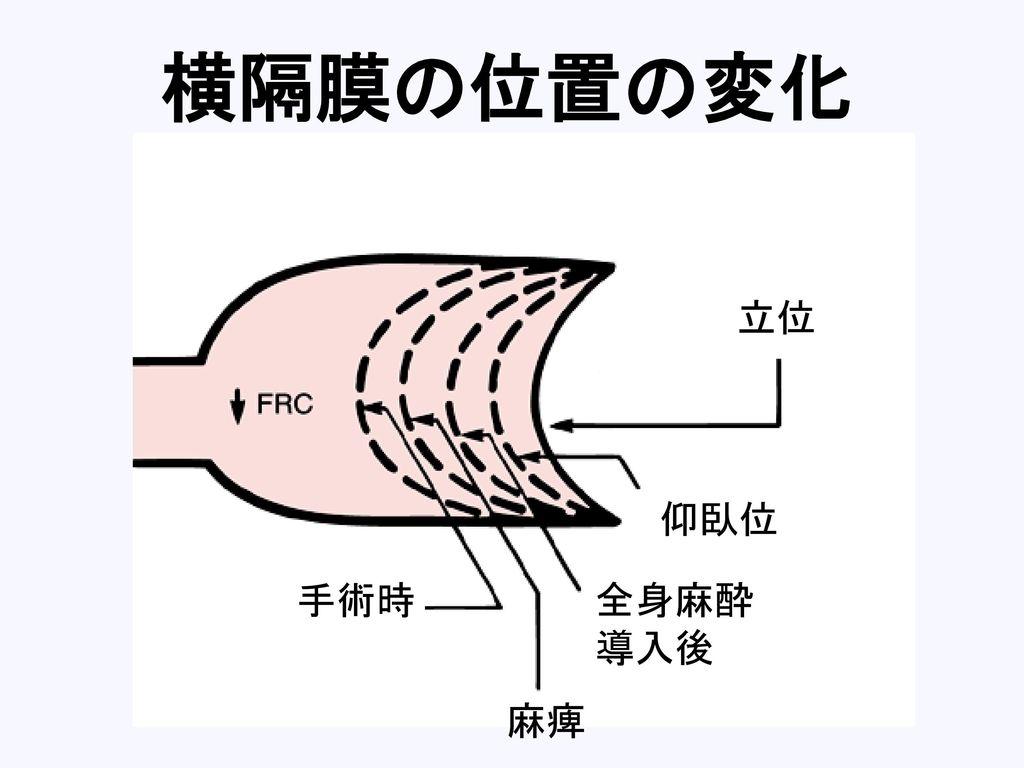 横隔膜の位置の変化 立位 仰臥位 手術時 全身麻酔 導入後 麻痺