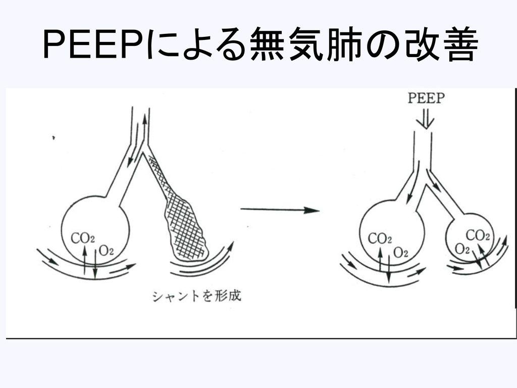 PEEPによる無気肺の改善