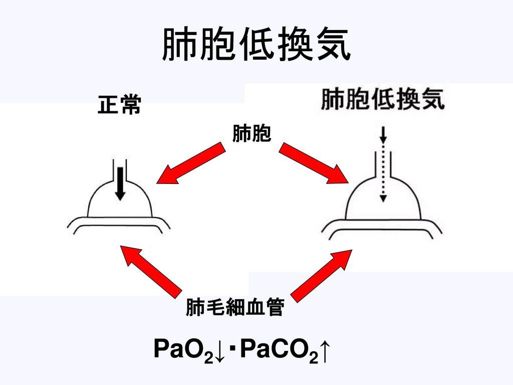 肺胞低換気 肺毛細血管 肺胞 正常 PaO2↓・PaCO2↑