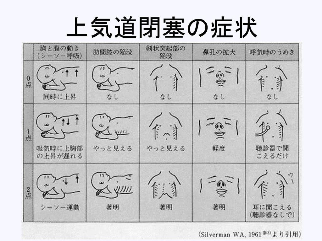 上気道閉塞の症状
