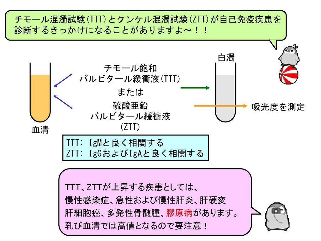 チモール混濁試験(TTT)とクンケル混濁試験(ZTT)が自己免疫疾患を