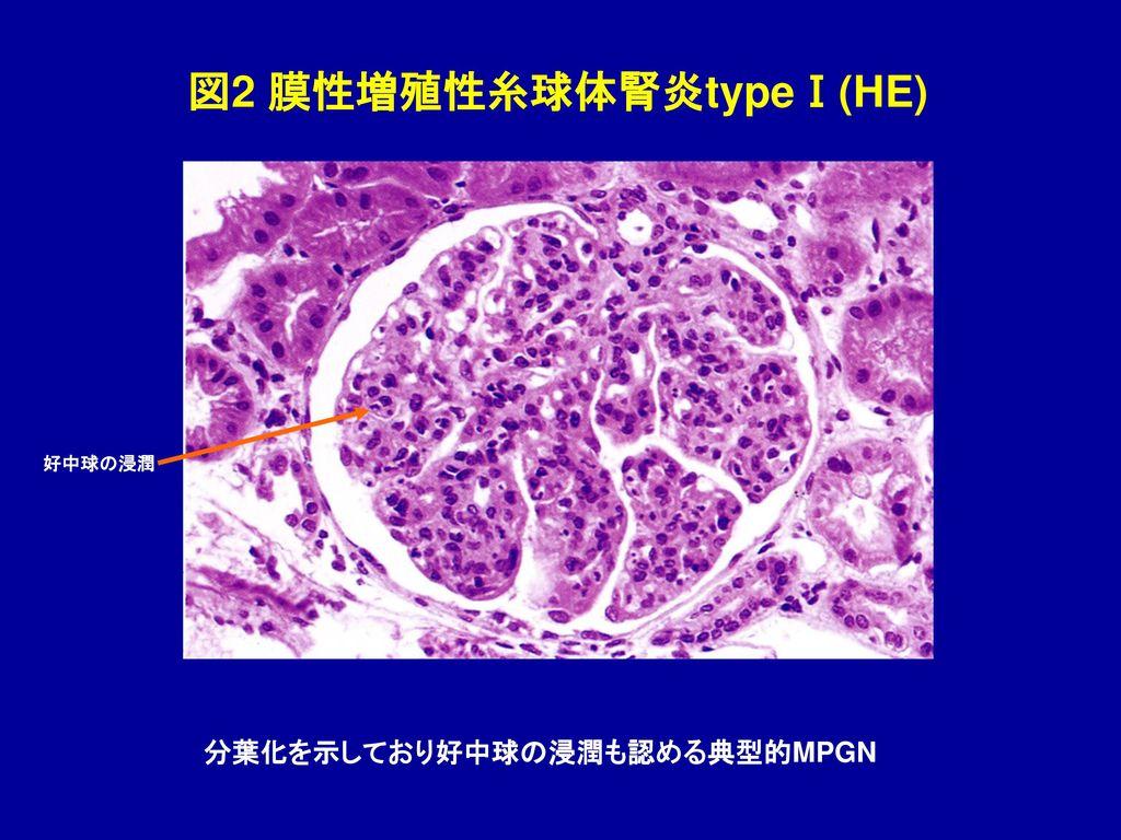 図2 膜性増殖性糸球体腎炎typeⅠ(HE)