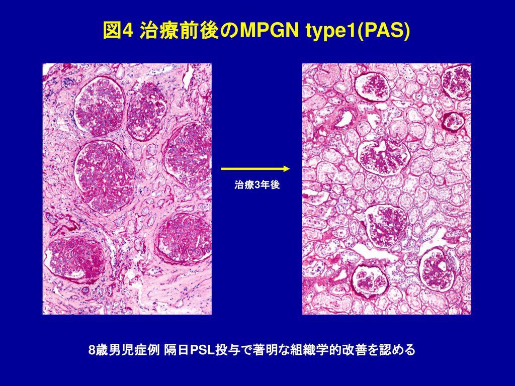 図4 治療前後のMPGN type1(PAS) 治療3年後 8歳男児症例 隔日PSL投与で著明な組織学的改善を認める