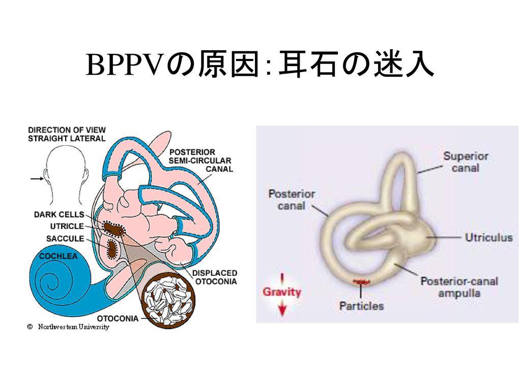 BPPVの原因:耳石の迷入