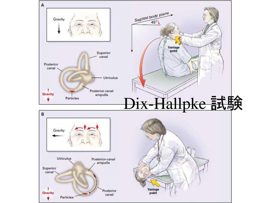 Dix-Hallpke 試験 懸垂頭位で眼球の回転方向が患側