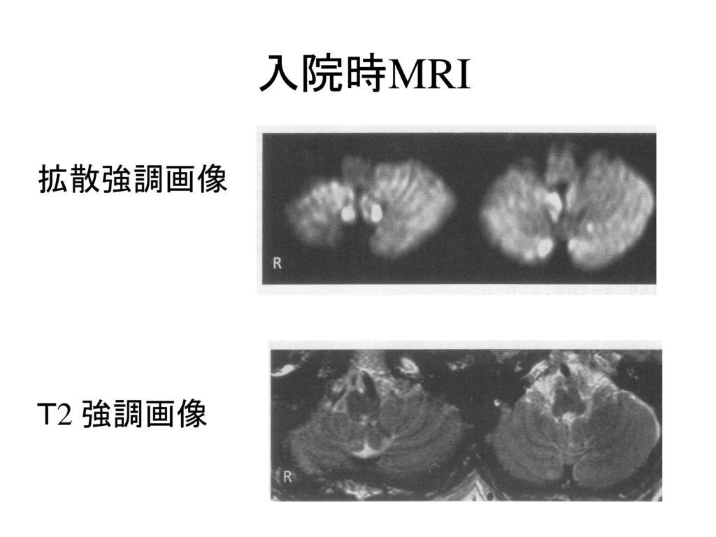 入院時MRI 拡散強調画像 T2 強調画像