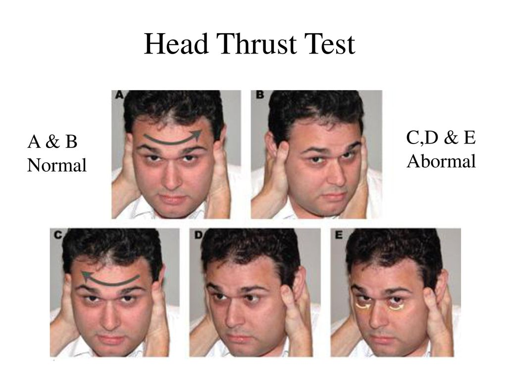 Head Thrust Test C,D & E A & B Abormal Normal