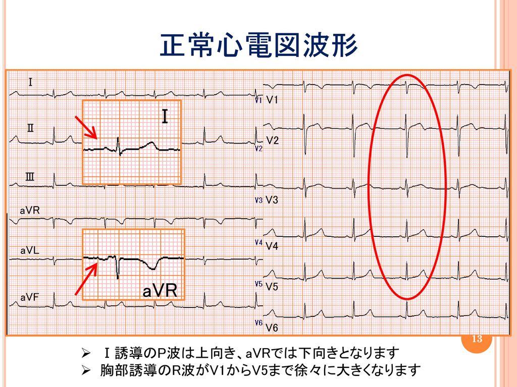 正常心電図波形 Ⅰ aVR Ⅰ誘導のP波は上向き、aVRでは下向きとなります 胸部誘導のR波がV1からV5まで徐々に大きくなります Ⅰ V1