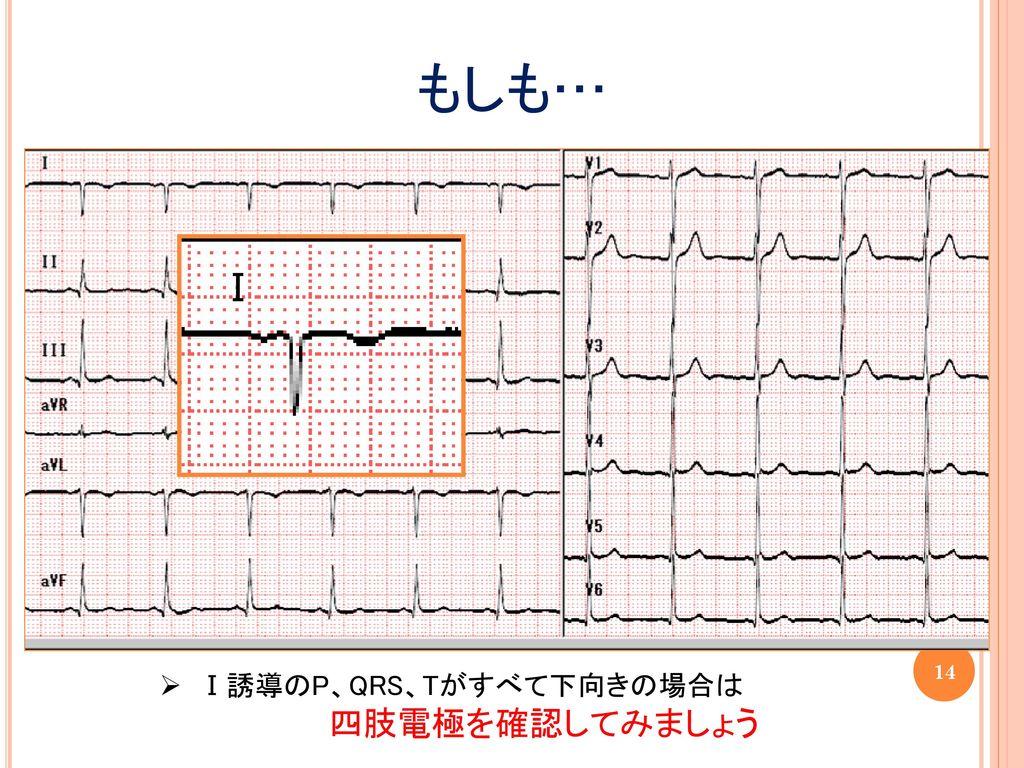 もしも… Ⅰ Ⅰ誘導のP、QRS、Tがすべて下向きの場合は 四肢電極を確認してみましょう