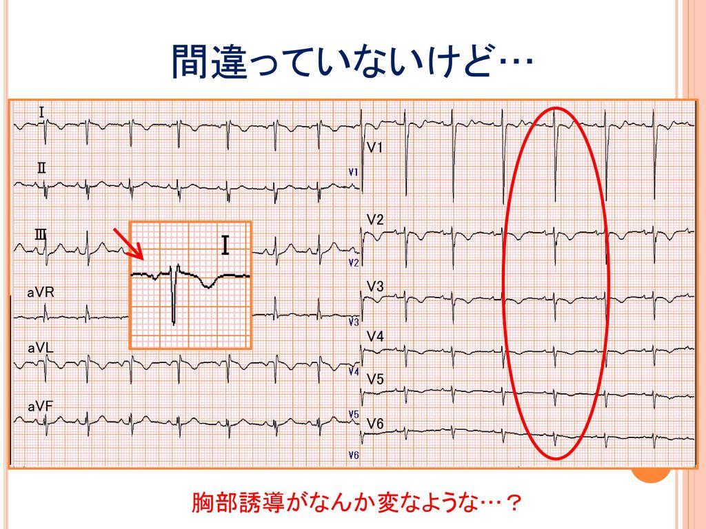 間違っていないけど… Ⅰ V1 Ⅱ V2 Ⅲ Ⅰ V3 aVR V4 aVL V5 aVF V6 胸部誘導がなんか変なような…?