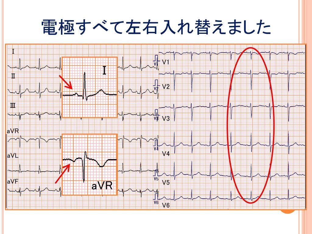 電極すべて左右入れ替えました Ⅰ V1 Ⅰ Ⅱ V2 Ⅲ V3 aVR aVL V4 aVF aVR V5 V6