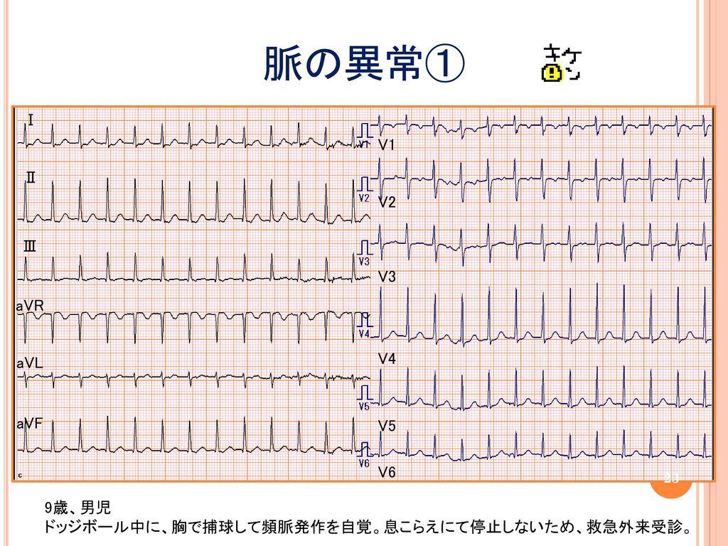 脈の異常① Ⅰ V1 Ⅱ V2 Ⅲ V3 aVR V4 aVL aVF V5 V6 9歳、男児