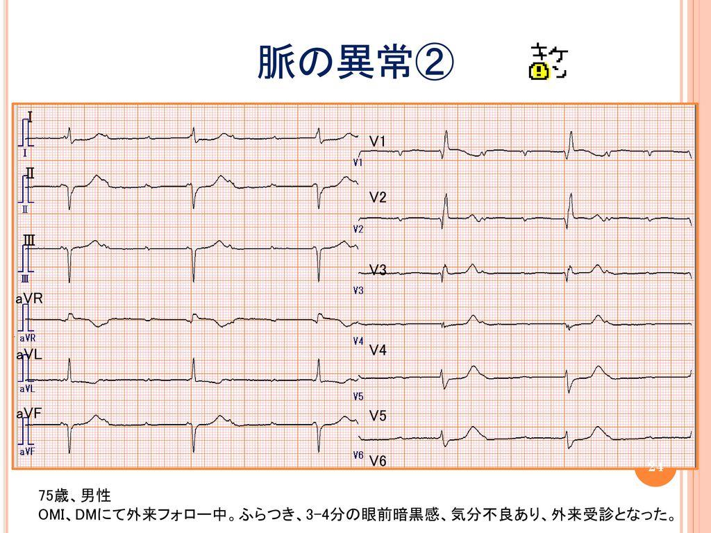 脈の異常② Ⅰ V1 Ⅱ V2 Ⅲ V3 aVR V4 aVL aVF V5 V6 75歳、男性