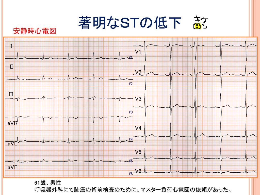 著明なSTの低下 安静時心電図 Ⅰ V1 Ⅱ V2 Ⅲ V3 aVR V4 aVL V5 aVF V6 61歳、男性