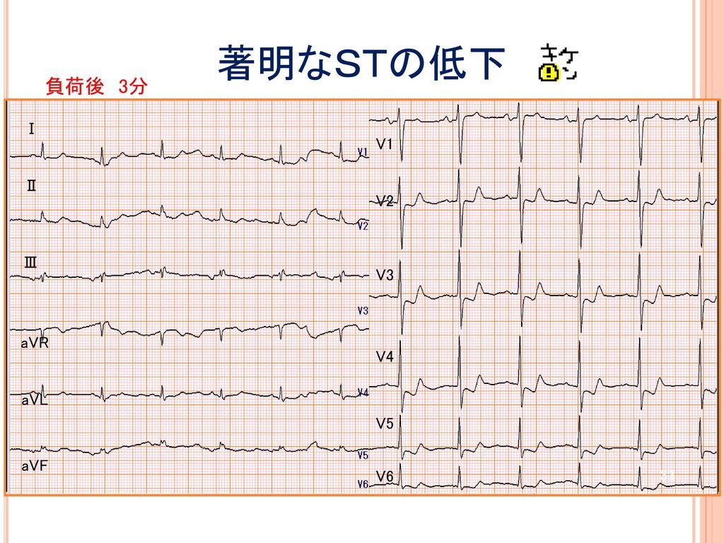 著明なSTの低下 負荷後 3分 Ⅰ V1 Ⅱ V2 Ⅲ V3 aVR HR69 BP159/99 V4 aVL V5 aVF V6
