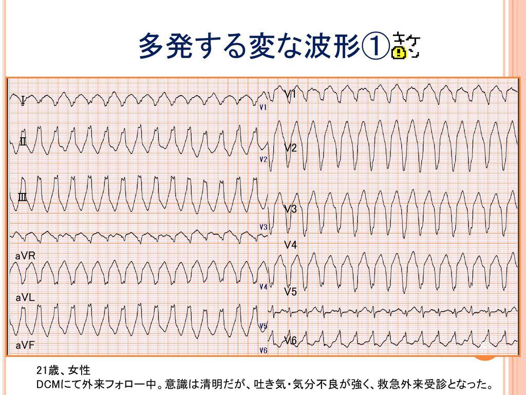 多発する変な波形① V1 Ⅰ Ⅱ V2 Ⅲ V3 V4 aVR V5 aVL V6 aVF 21歳、女性