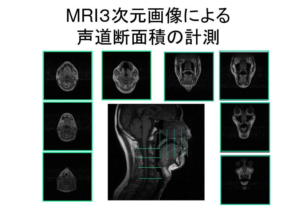 MRI3次元画像による 声道断面積の計測