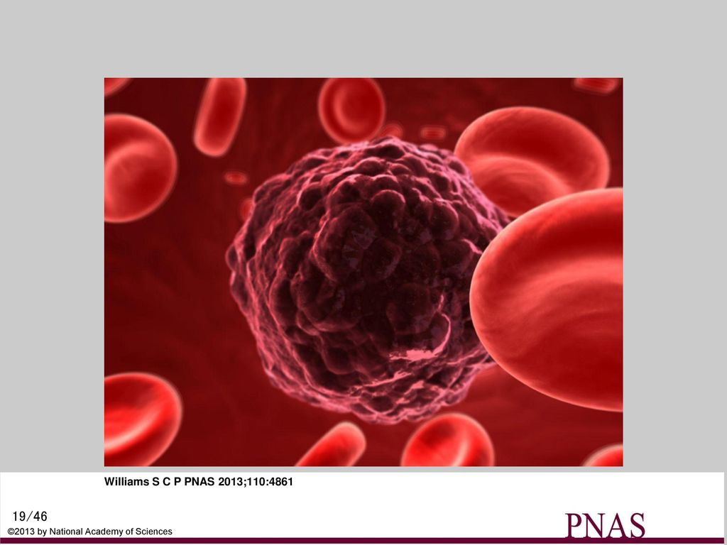 A circulating tumor cell has sloughed off cancerous tissue and moves through the bloodstream to a new site. ©iStockPhoto.com/Eraxion.