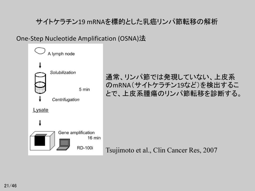 サイトケラチン19 mRNAを標的とした乳癌リンパ節転移の解析
