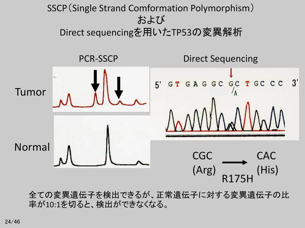 Tumor Normal CGC (Arg) CAC (His) R175H