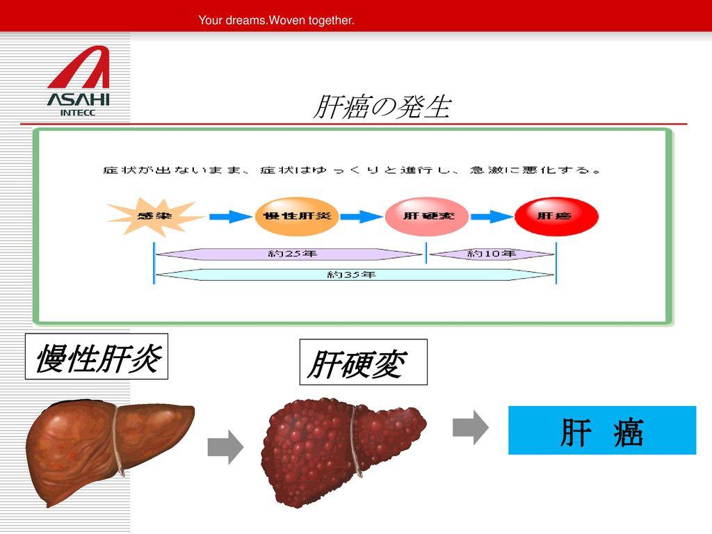 肝癌の発生 肝不全 慢性肝炎 肝硬変 肝 癌